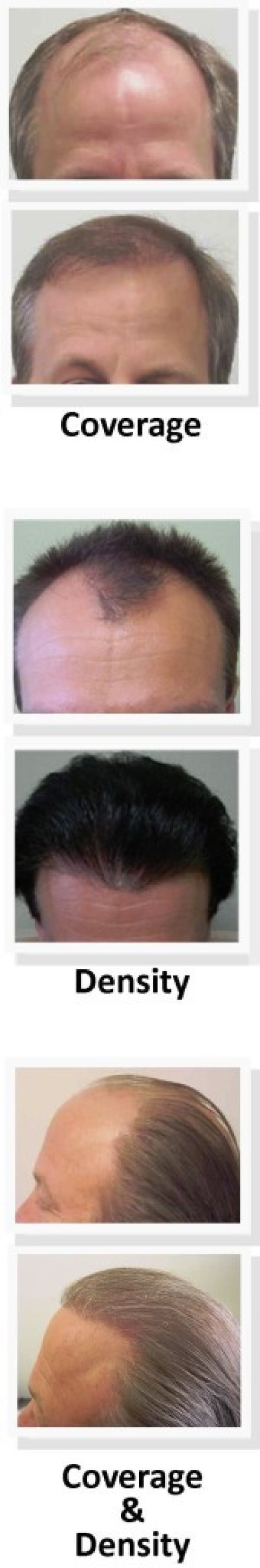 Marketplace News: Local office offers low-cost hair restoration