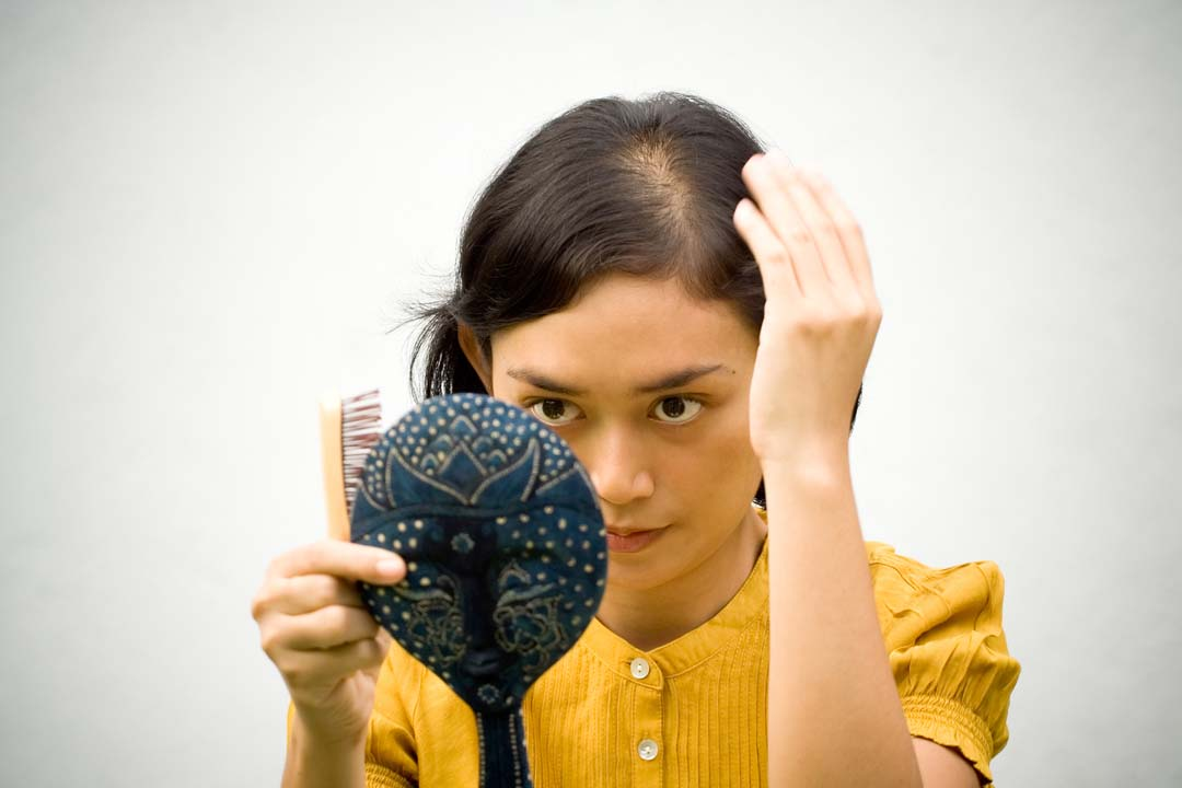 Women and hair loss: There is good news for a remedy