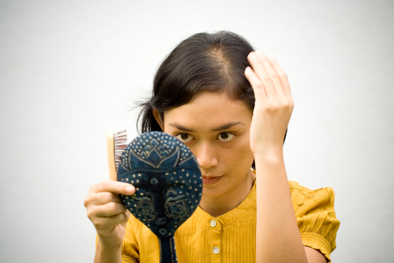 """""""If a woman is experiencing thinned out hair over their entire scalp, that is something that should first be addressed medically. If the hair loss is in a distinct pattern or patch area, we can help,"""" says Dan Wagner, CEO of MyHairTransplantMD in Oceanside. Courtesy photo"""