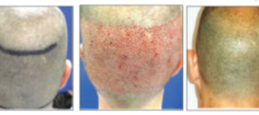 "Marketplace News: ""No Scar"" Hair Restoration Technology"