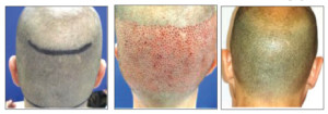 The Follicular Unit Extraction (FUE) procedure is not as widely available as the traditional Follicular Unit Grafting method, and Dan Wagner, CEO of MyHairTransplantMD in Oceanside, is proud to be able to offer it to North County clients. Courtesy photos