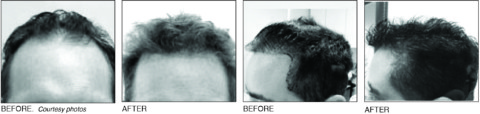 Free in-depth hair loss consultation