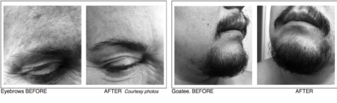Hair restoration options extend to facial and eyebrow hair