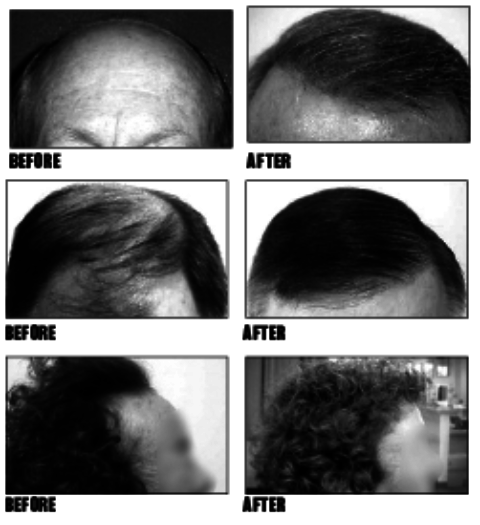 Exciting new 'No Scar' hair restoration method