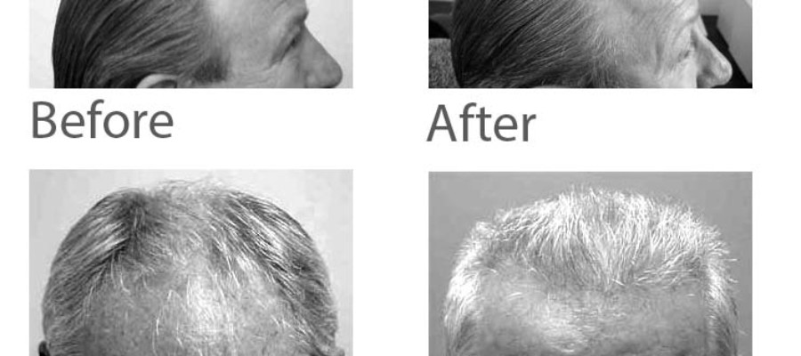 Hair restoration and summertime savings