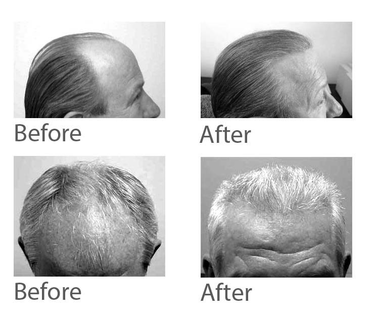 Hair restoration:  What other clinics don't tell you about coverage, density