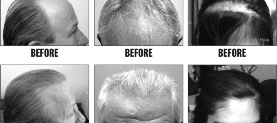 Hair Restoration…Why Wait? Get Lasting, Natural Results